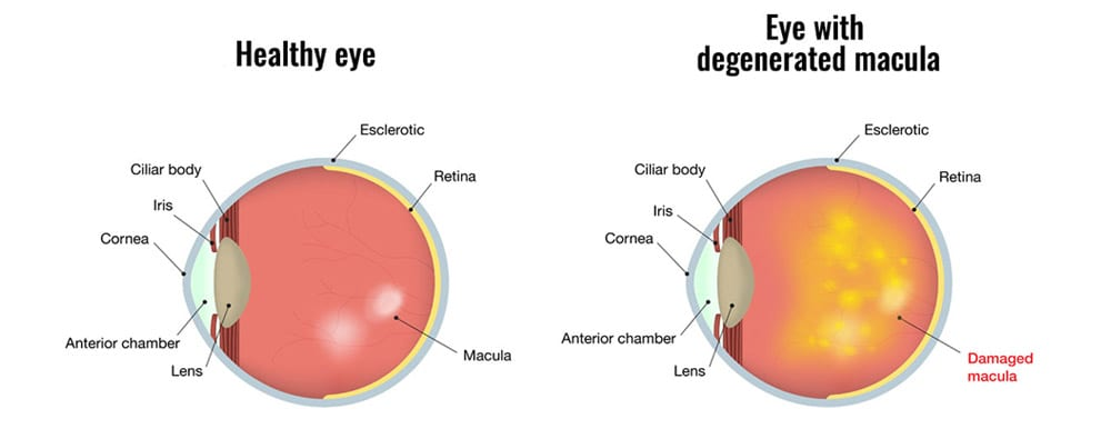 What is Macular Degeneration and is it treatable?
