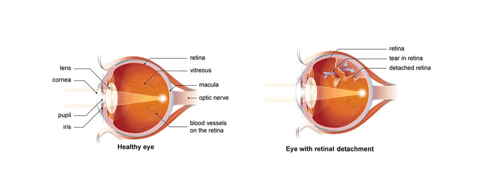 Retinal-detachment